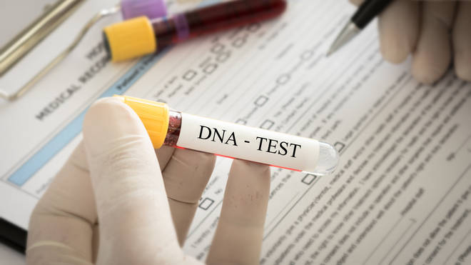 People have explained on the forum DNA kits are very popular at the moment